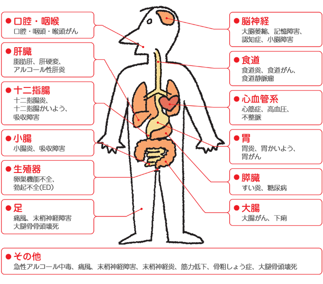 消化器の病気:イラスト